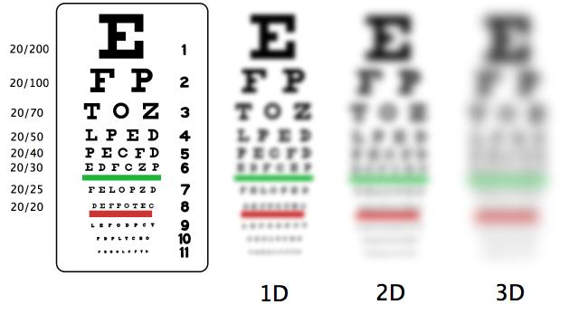 Snellen-myopia